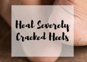 Heal Severely Cracked Heels