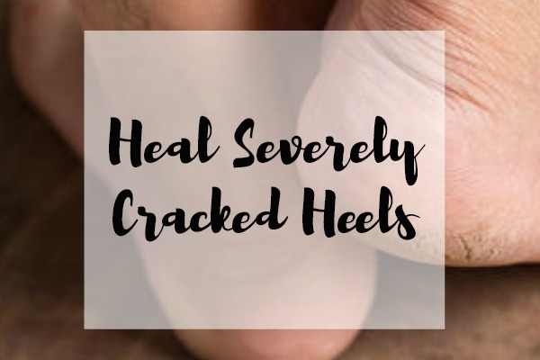 Heal Severely Cracked Feet